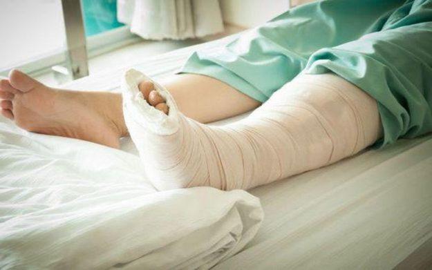 Гипсовая повязка на ноге