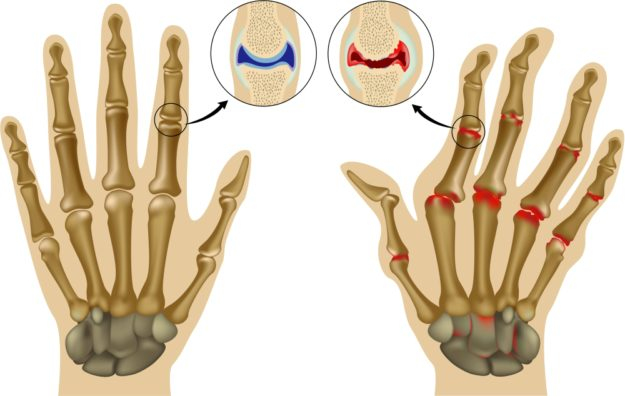 боль в суставах пальцев рук