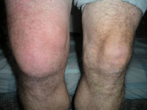Бурсит коленного сустава фото