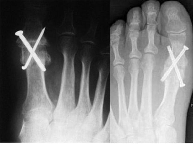 Рентгеновский снимок после артродеза плюснефалангового сустава