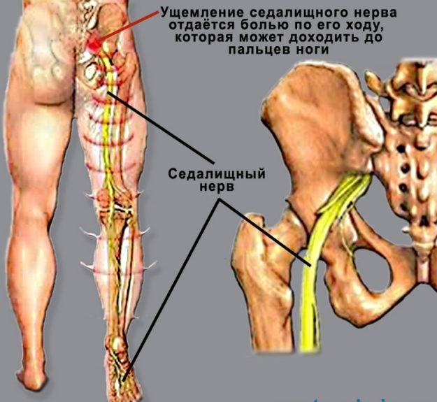 Люмбоишиалгия причины особенности симптомы лечение