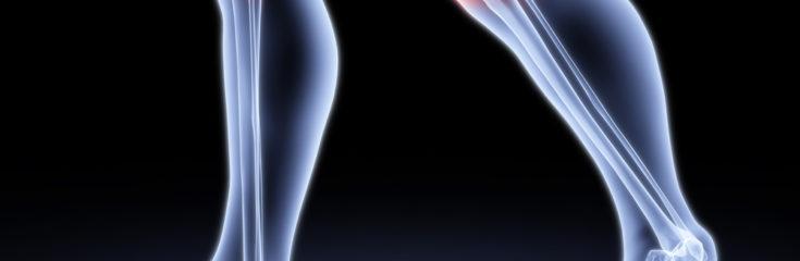 Почему хрустят суставы? Что делать при их лечении?