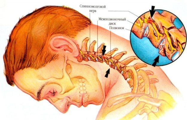Шейный отдел позвоночника симптомы и лечение радикулопатии