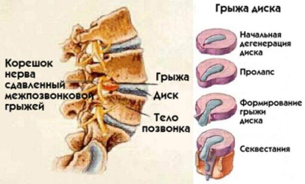 Секвестрированная грыжа межпозвоночного диска