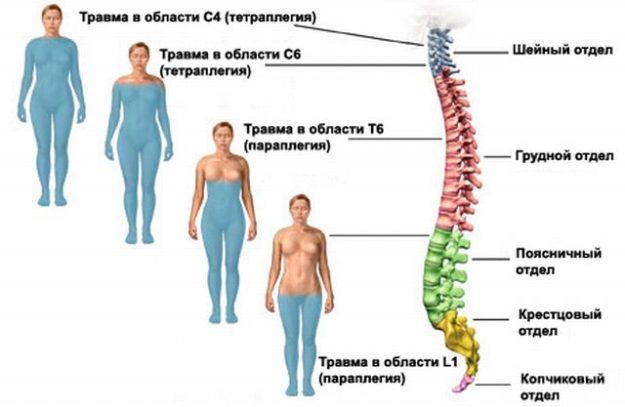Неврологические симптомы при миелите спинного мозга