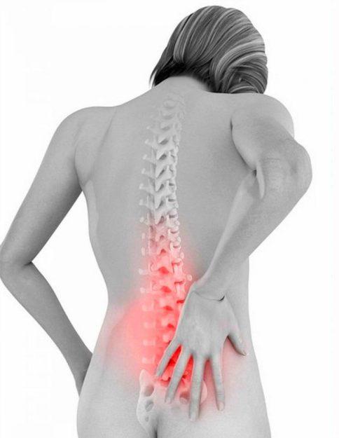 Симптомы срыва спины