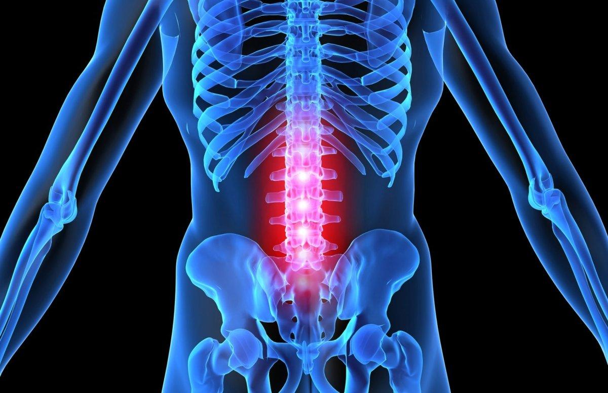 Острый поперечный миелит спинного мозга