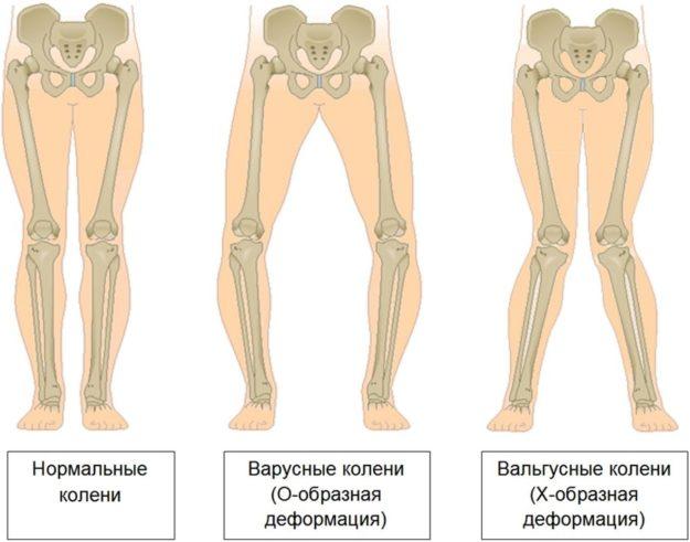 О-образное или Х-образное искривление ног