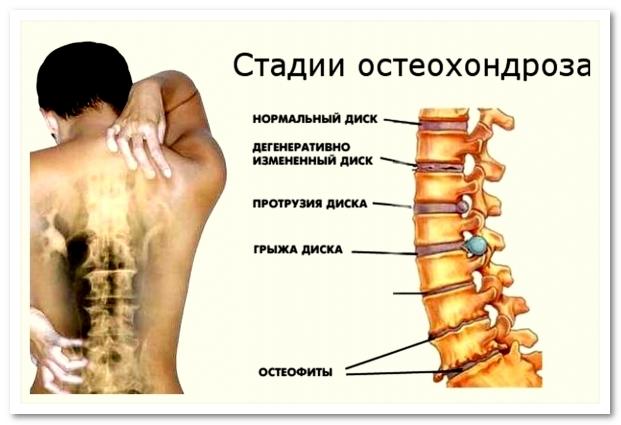 Упражнения при остеохондрозе шейного отдела позвоночника в домашних условиях