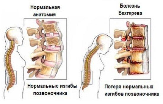 Признаки болезни Бехтерева