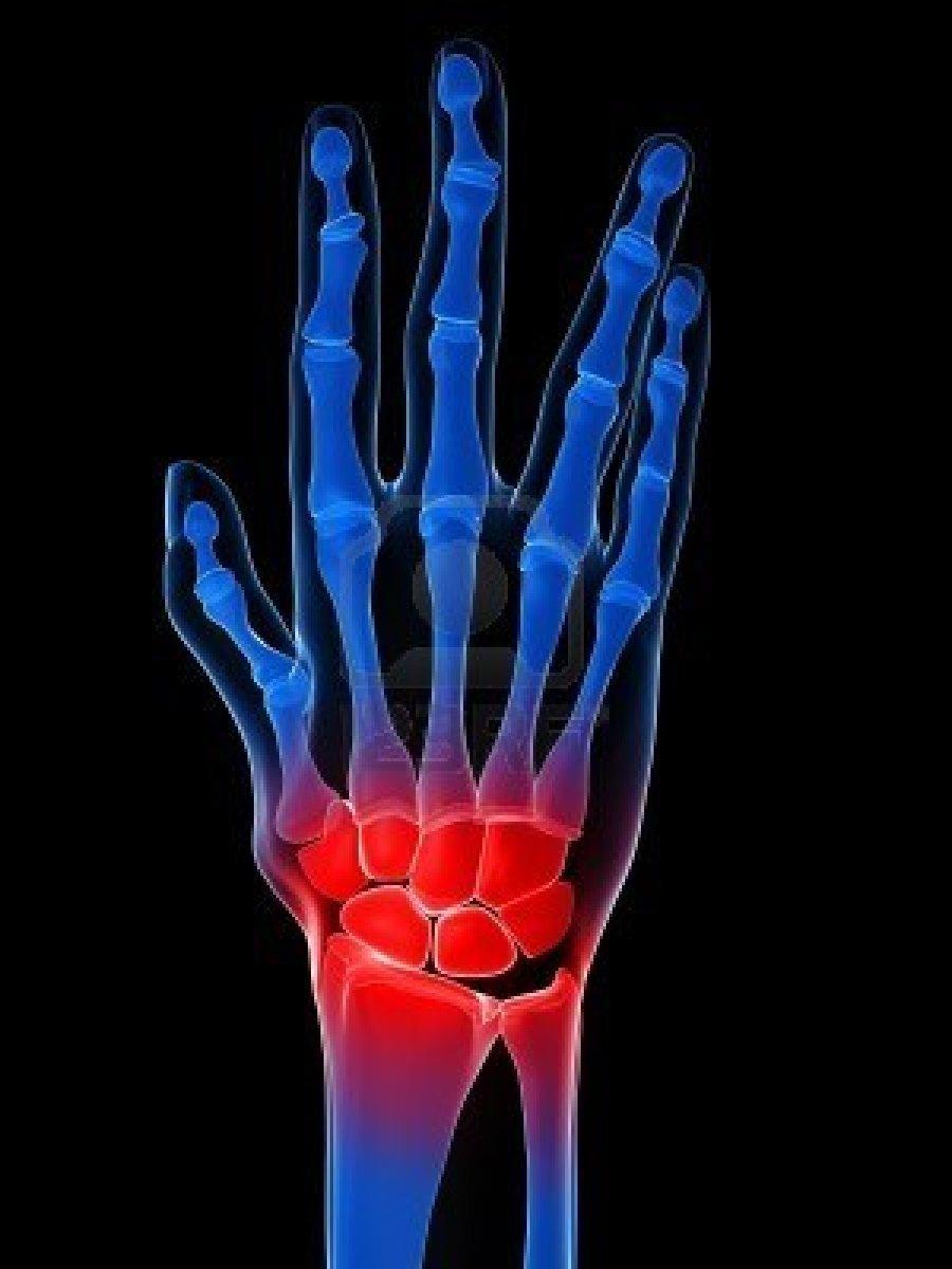 ревматоидный артрит нетрадиционное лечение
