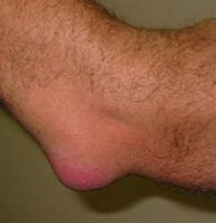 Сломала палец на ноге лечение