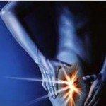 Деформирующий артроз тазобедренного сустава: симптомы, причины, лечение