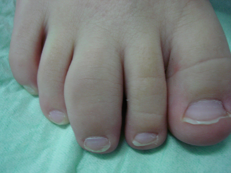артроз суставов пальцев ног лечение народными средствами