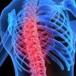 Шейный остеохондроз как предотвратить