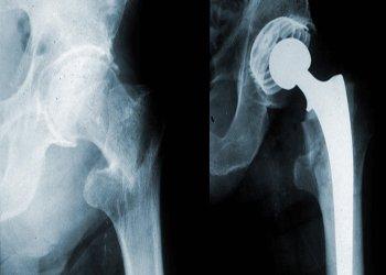 Признаки остеопороза тазобедренного сустава ломит суставы рака