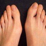 Поперечное плоскостопие: лечение, симптомы, причины