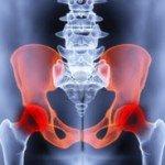 Боль в тазобедренном суставе — причины и методы лечения