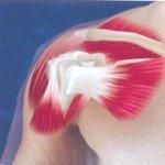 Вывих плечевого сустава: классификация, симптомы, лечение