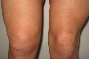 синовита коленного сустава