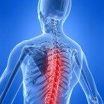 Спондилез грудного отдела позвоночника – причины, симптомы, лечение и профилактика.