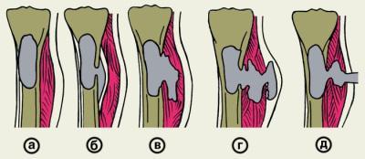 Схема образования свищей при остеомиелите