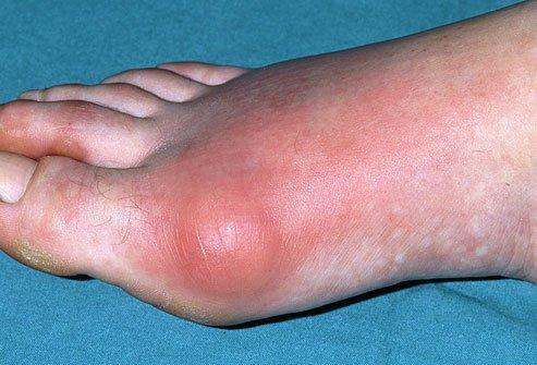 Подагрический артрит большого пальца ноги