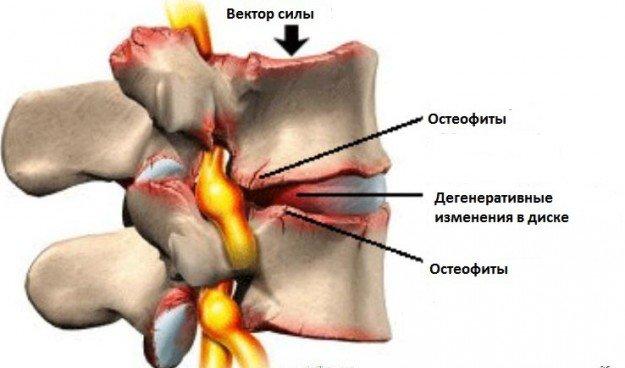 Остеофиты в позвоночнике