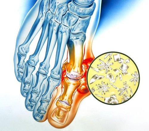 Отложение кристаллов мочевой кислоты при подагре и вызванное ими изменение в суставе