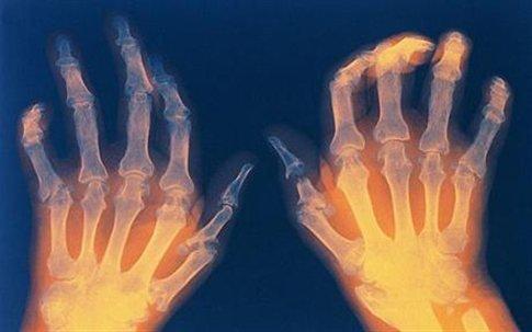 Рентгенограмма кистей при ревматоидном полиартрите: видна характерная деформация кисти и симметричность поражения