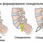 Спондилолистез: причины, диагностика, лечение