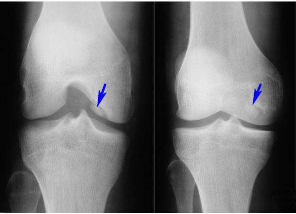 Рентгенограмма коленного сустава, при которой обнаружена внутрисуставная мышь.