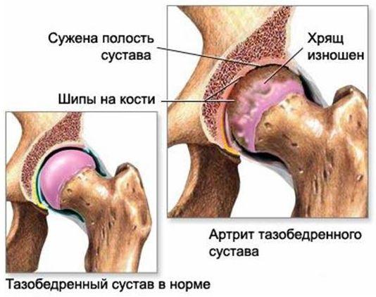 Как лечить коксартроз голеностопного сустава
