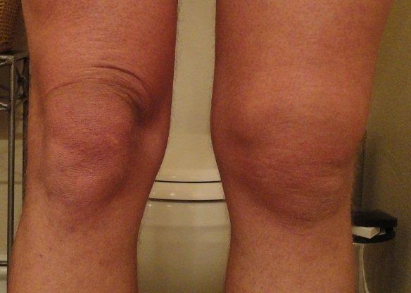 Отек коленного сустава при болезни Гоффа