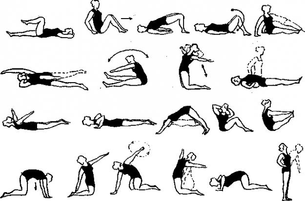 Комплекс лечебной гимнастики при пояснично-крестцовом радикулите