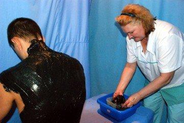 Лечение радикулита сапропелевыми грязями