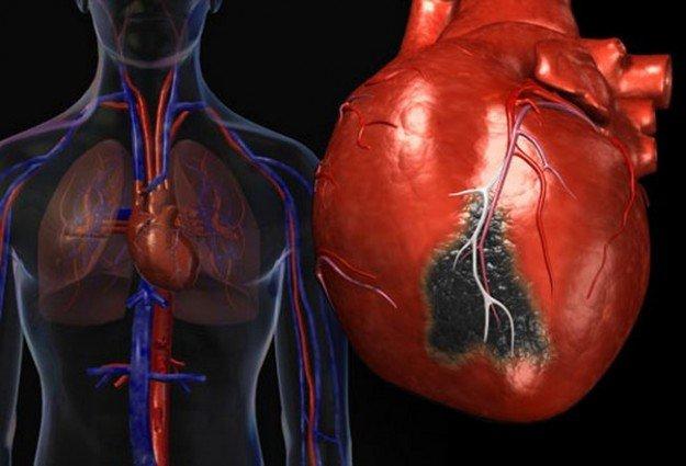 Угроза сердцу при ревматизме