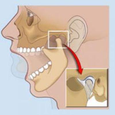 движения в височно-нижнечелюстном суставе при открывании рта