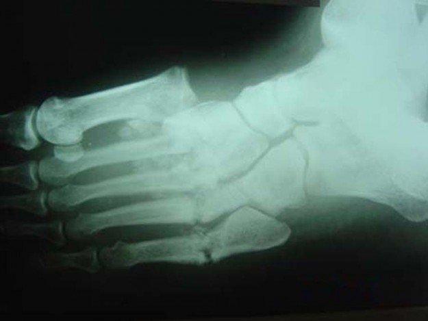 рентгенограмма при артропатии Шарко