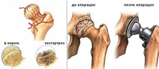 Асептический некроз головки бедренной кости: лечение