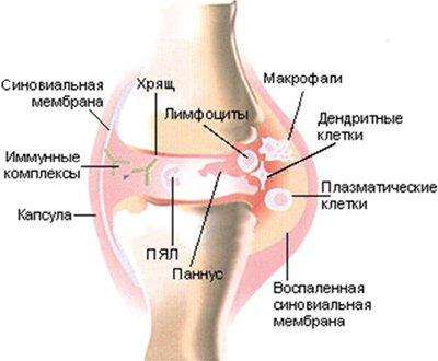 механизм развития реактивного артрита