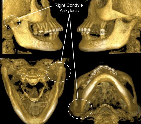 артроз суставов нижние челюсти
