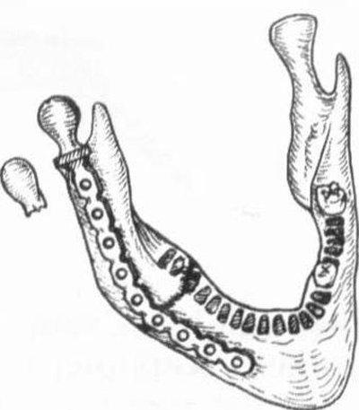 артропластика височно-нижнечелюстного сустава