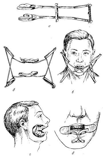 упражнения для челюстного сустава при смещении