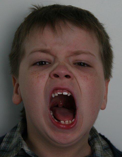 смещение челюсти при анкилозе височно-нижнечелюстного сустава