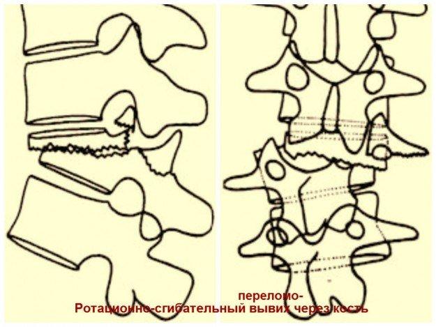 Ротационно-сгибательный переломо-вывих через кость