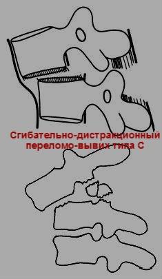"""Сгибательно-дистракционный переломо-вывих типа """"С"""""""