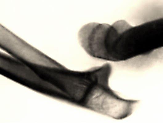 Задний вывих локтевого сустава
