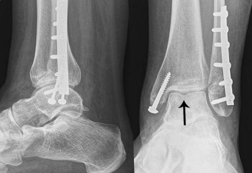 Хирургия двойного перелома