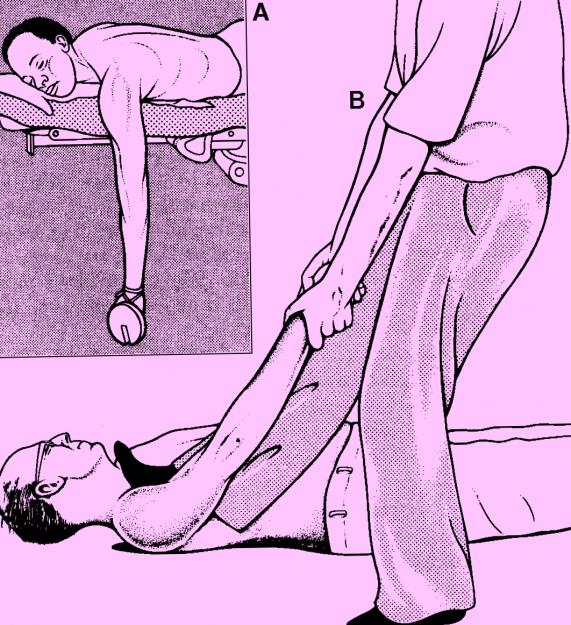 Вправление вывиха, посредством прикрепления отягощения и двойное вытяжение, выполняемое одним человеком